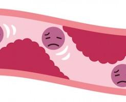 動脈硬化の血管